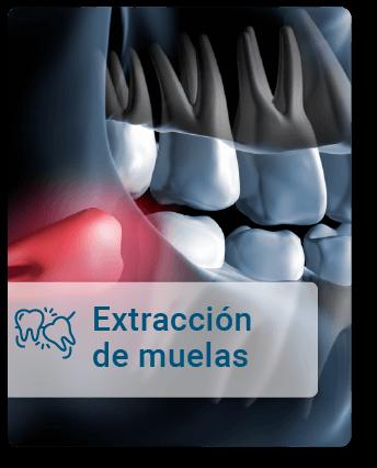 Extraccion-de-muelas
